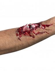 Fausse blessure os cassé