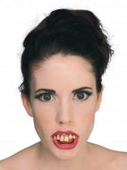 Dentier dents pourries